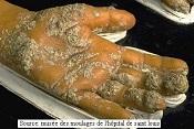 la galle est un acarien qui se développe grace à l'humidité de la maison avec des murs humides